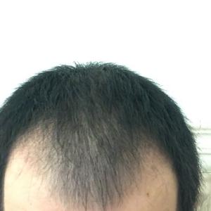重归于好-植发术后第61天图片