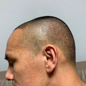 只是一个配角-植发术后第3天图片