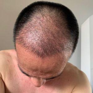 只是一个配角-植发术后第20天图片