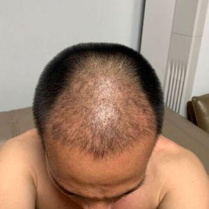 只是一个配角-植发术后第25天图片