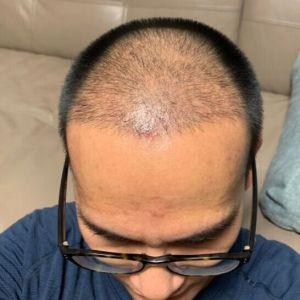 只是一个配角-植发术后第30天图片