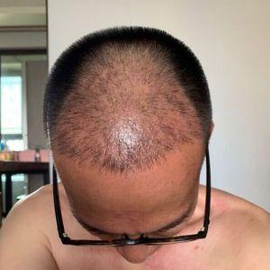 只是一个配角-植发术后第35天图片