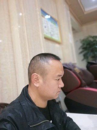 米阳光-植发术后第59天图片