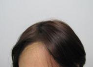 哪些人群比较适合种植发际线 调整后会不会自然