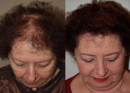 头顶加密种植多少钱 加密植发的禁忌人群和适应人群