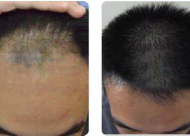 头发加密有哪些适宜人群 加密后多久看到效果