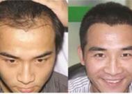 秃顶做头顶加密效果怎么样 加密植发手术价格怎么算