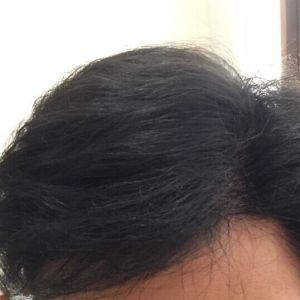 植发前后对比图
