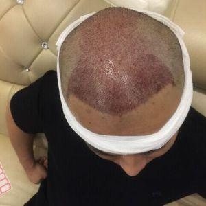 早就忘了我-植发术后第89天图片