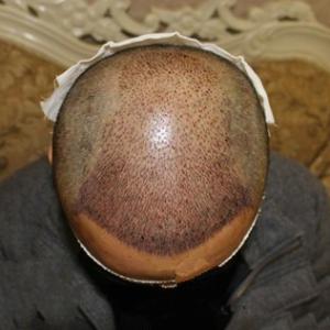 中國好菇涼-植发术后第651天图片