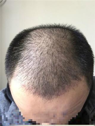 中國好菇涼-植发术后第652天图片