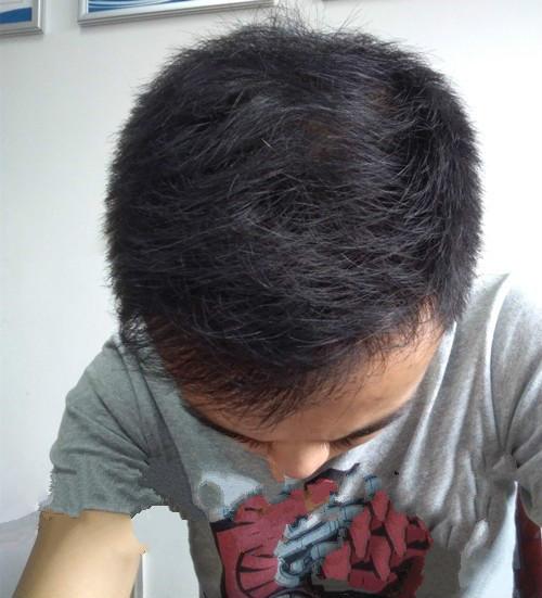 我没有的头发发通过植发也已经长出来了(来自用户 : 中國好菇涼 的植发效果分享)