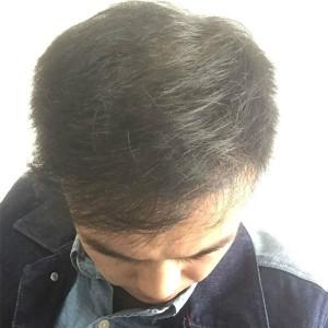 中國好菇涼-植发术后第661天图片