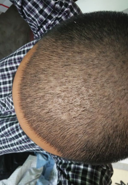 种植发际线过程分享记录(来自用户 : 少年余生有 的植发效果分享)