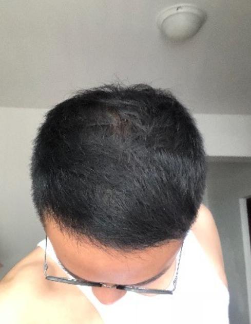 种植发际线的前后脱变(来自用户 : 眸中尽是你 的植发效果分享)