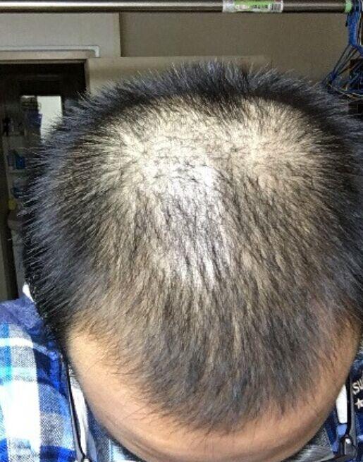植发之后感觉自己自信心回来了(来自用户 : 安好勿念 的植发效果分享)