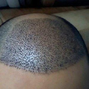莫爱-植发术后第4天图片