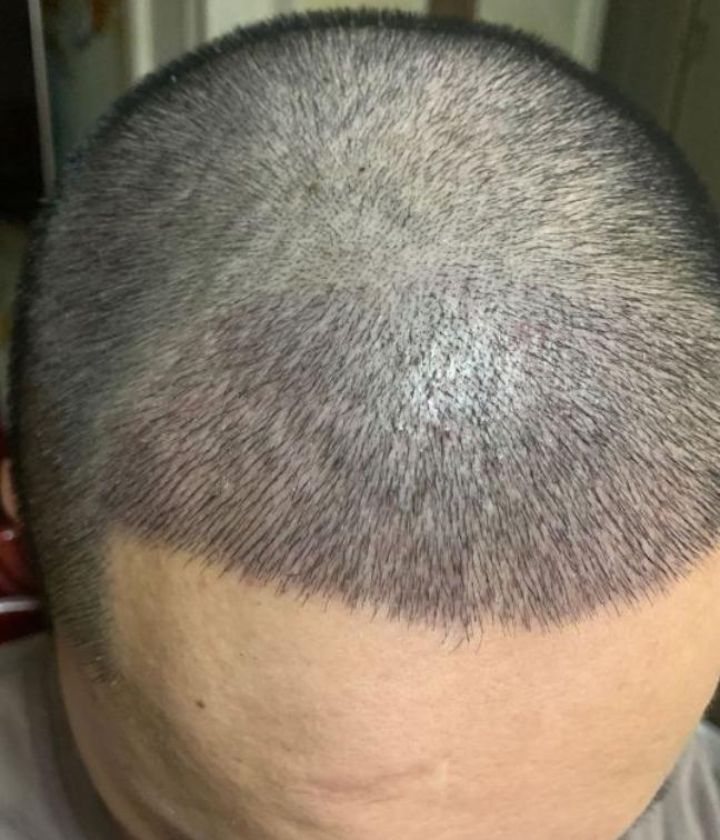 有了发际线的额头都不一样了(来自用户 : 莫相离 的植发效果分享)