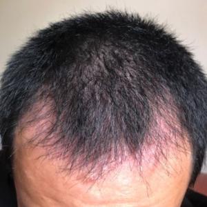 藤川一郎-植发术后第61天图片