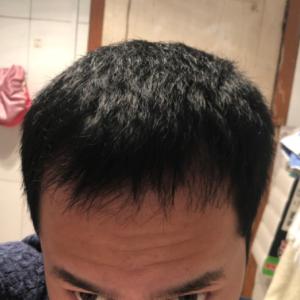 藤川一郎-植发术后第97天图片