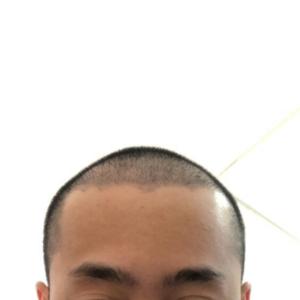 藤川一郎-植发术后第104天图片