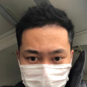 藤川一郎-植发术后第152天图片