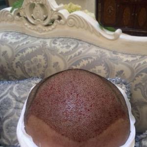 一枕黄粱-植发术后当天图片
