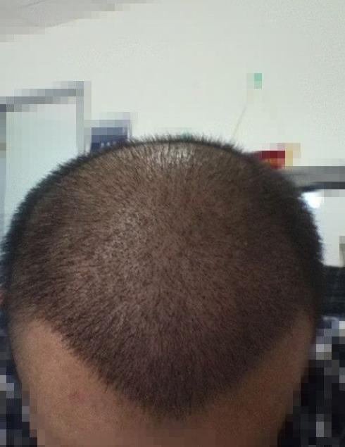 种植发际线的前后对比(来自用户 : 一枕黄粱 的植发效果分享)