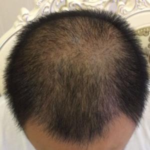 一味宠爱-植发术后第30天图片