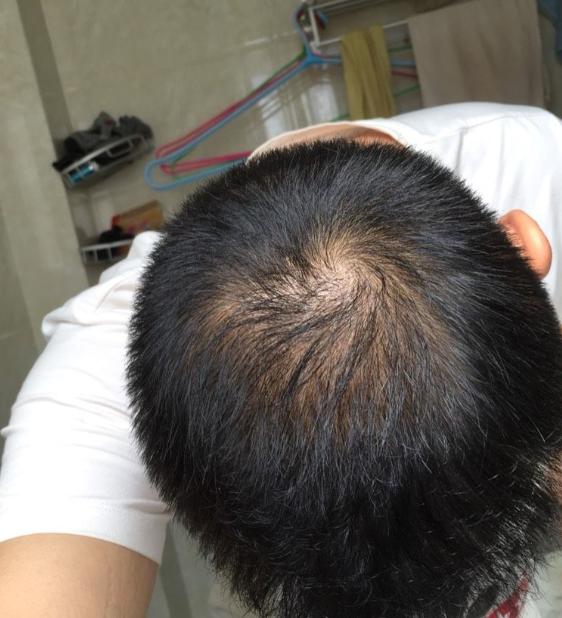 植发之后的我都有了那些变化(来自用户 : 一点痴念 的植发效果分享)