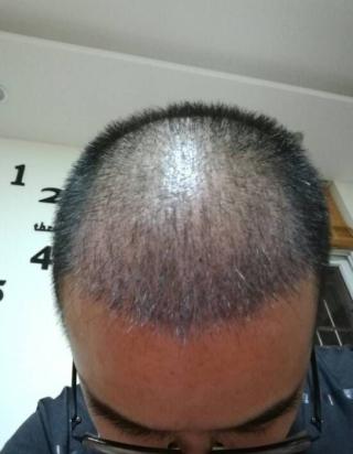 一介俗人-植发术后第40天图片