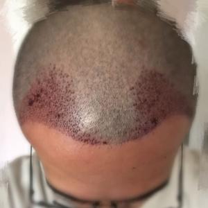 穷极一生-植发术后当天图片