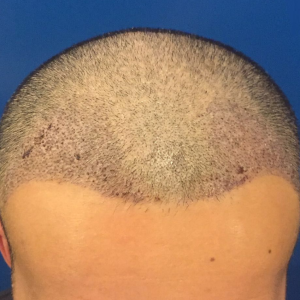 穷极一生-植发术后第5天图片