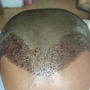 遗失的美好-植发术后第2天图片