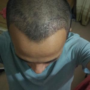遗失的美好-植发术后第6天图片