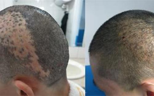 疤痕种植前后对比