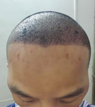 朕好萌-植发术后第1天图片