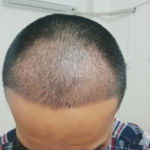 朕好萌-植发术后第10天图片