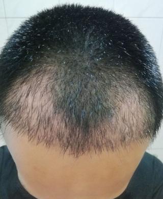 朕好萌-植发术后第31天图片