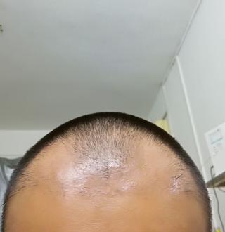 朕好萌-植发术后第51天图片