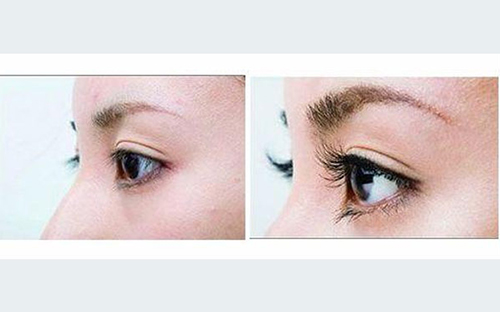 睫毛种植前后对比