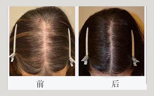 加密植发前后对比