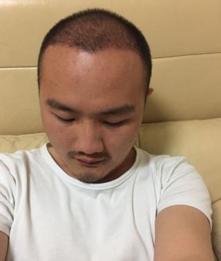 心在逞强-植发术后第31天图片