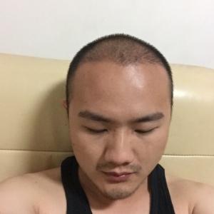 心在逞强-植发术后第117天图片