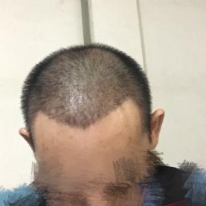 打小就帅-植发术后第19天图片