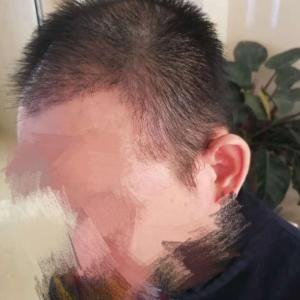 打小就帅-植发术后第45天图片