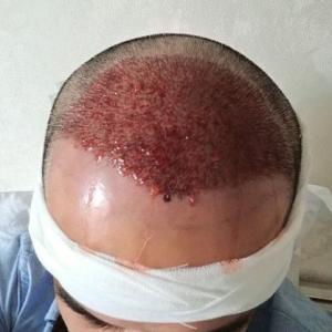 别害怕我在-植发术后当天图片