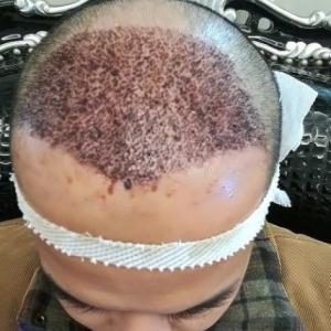 别害怕我在-植发术后第1天图片