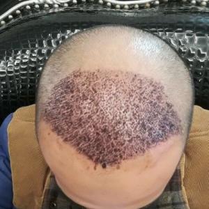 别害怕我在-植发术后第2天图片