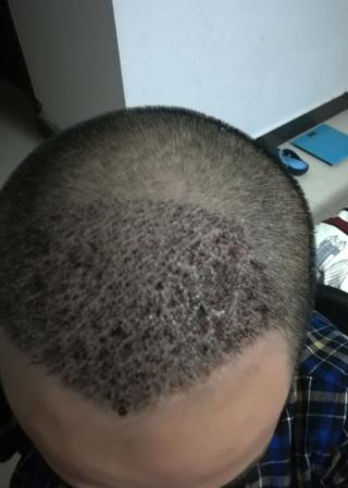别害怕我在-植发术后第4天图片